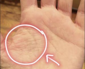 Решетка на руке